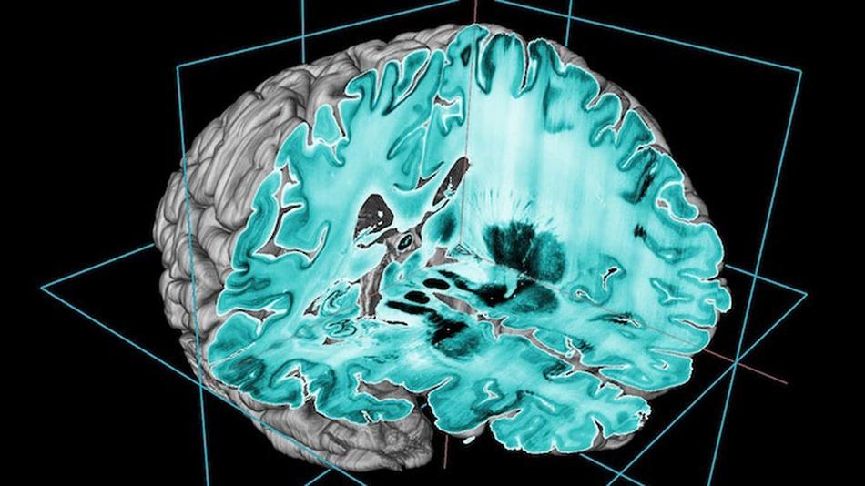 high-res-brain-3D