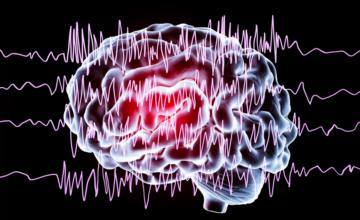 Des chercheurs israéliens ont développé un wearable qui prédit les crises d'épilepsie avant qu'elles ne surviennent